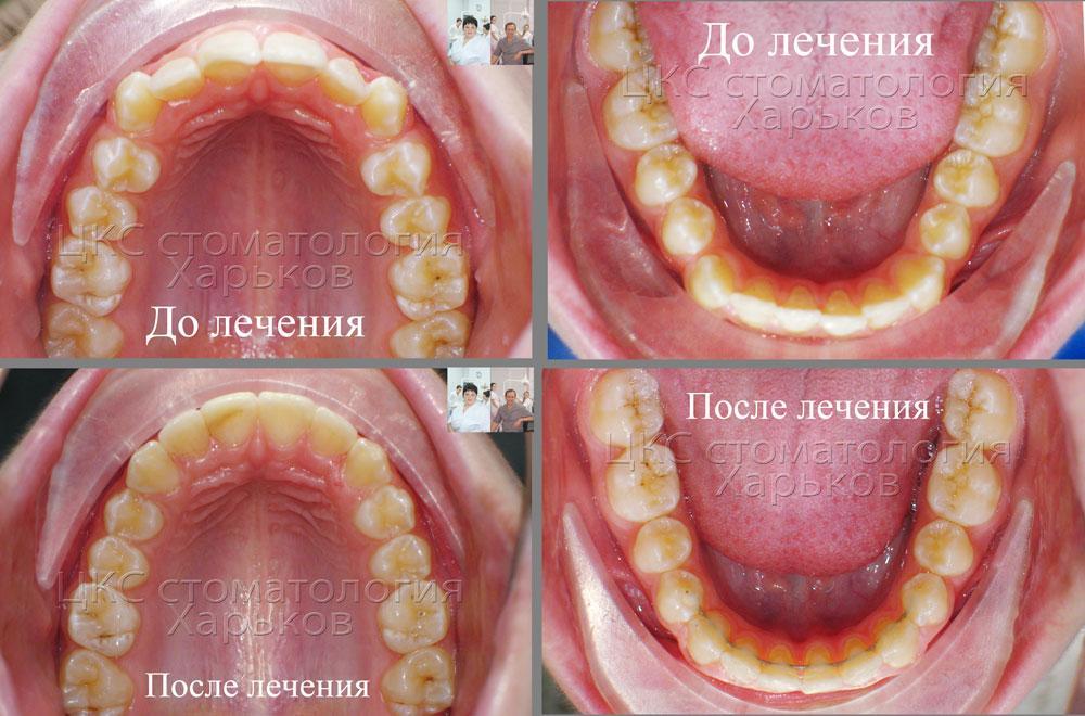 Фото зубного ряда до и после брекетов