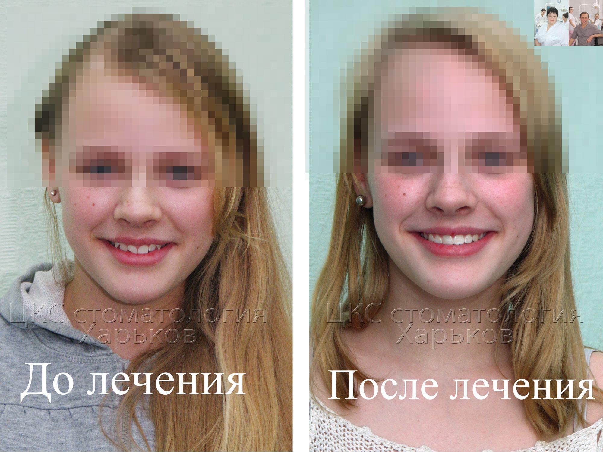 Фото улыбки пациента до и после брекетов