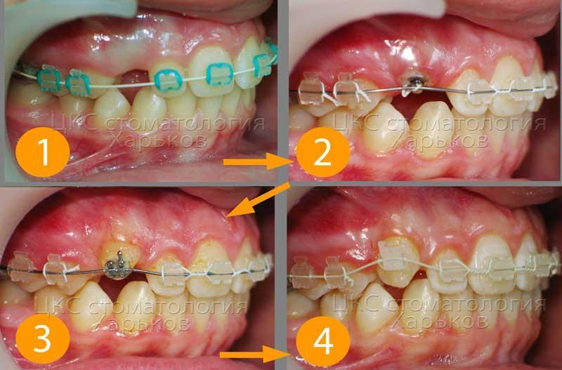 Этапы перемещения ретенированного зуба