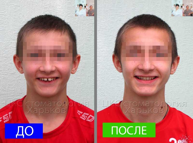 Улыбка ДО и ПОСЛЕ ортодонтического лечения