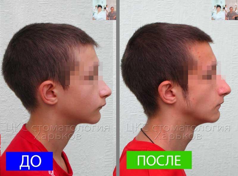 Профиль до и после брекетов