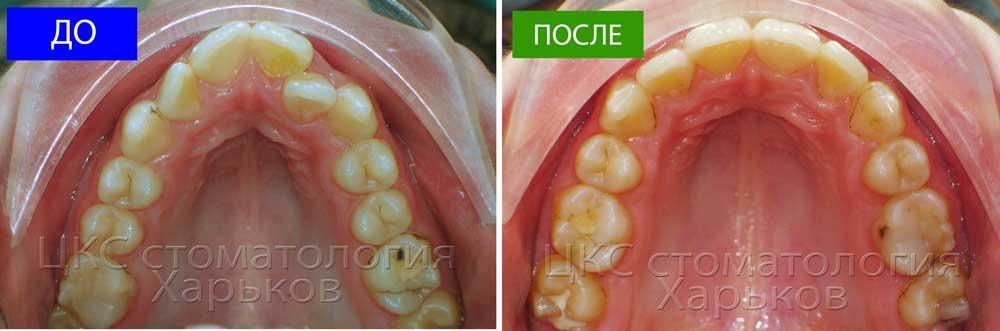 Зубной ряд до и после лечения брекетами
