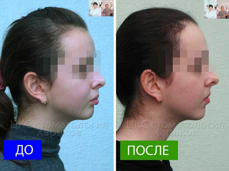 Профиль пациента ДО и ПОСЛЕ лечения брекетами