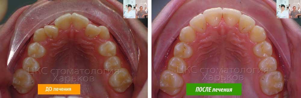 Форма челюсти ДО и ПОСЛЕ, лечение лучшими брекетами