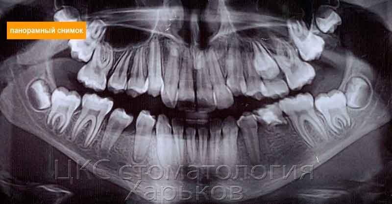 панорамный снимок неровных зубов