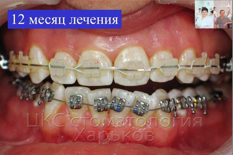 12 месяц ортодонтического лечения
