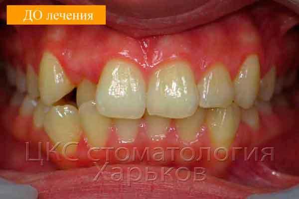 Зубы ДО лечения