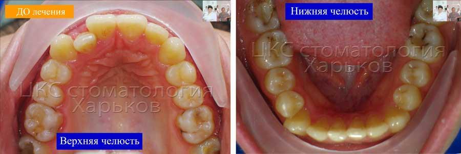 Зубные ряды ДО лечения