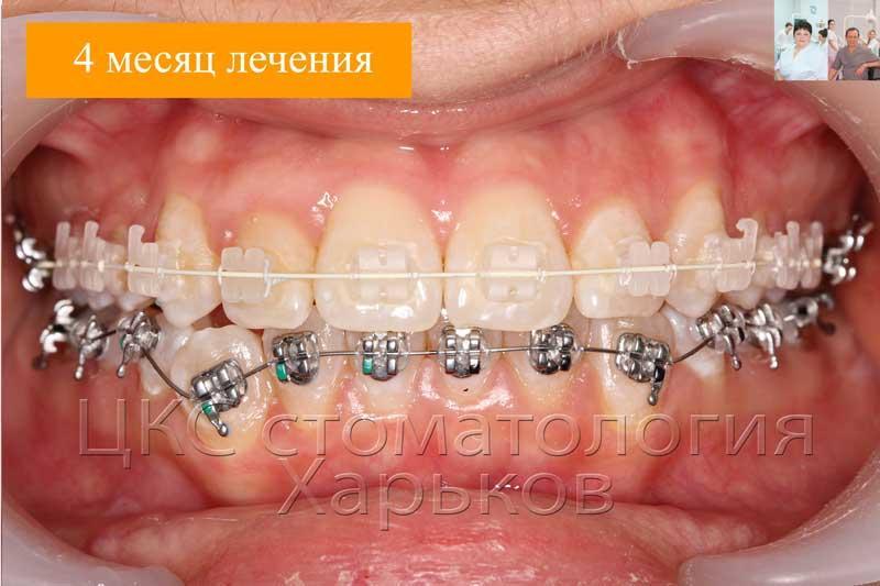 Установка металлической системы на нижнюю челюсть