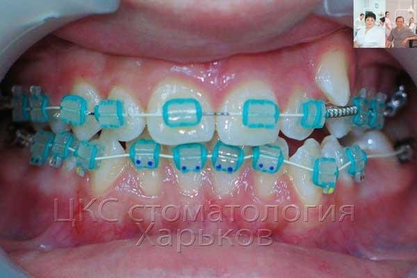 На зубы установлены керамические брекеты