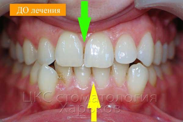 Кривые зубы ДО лечения