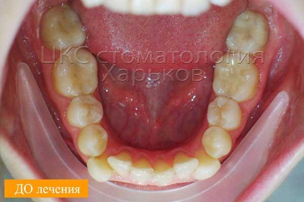 Очень кривые зубы нижней челюсти