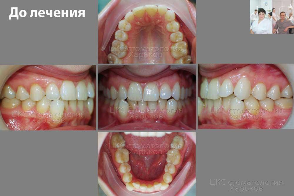 Фото зубов во всех ракурсах