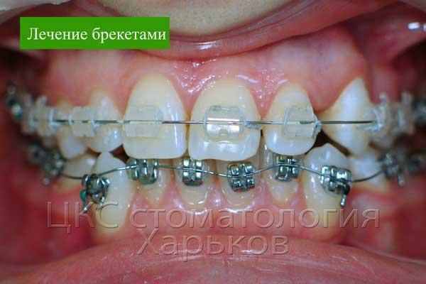 Фото в ходе ортодонтического лечения