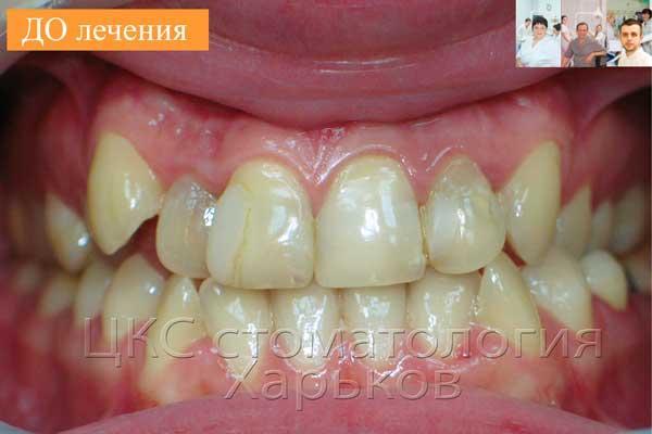 Неровные зубы с некрасивыми пломбами