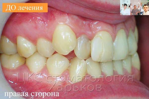 Аномальное положение зубов