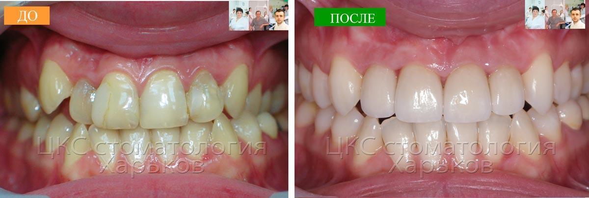 Положение,форма, цвет зубов ДО и ПОСЛЕ