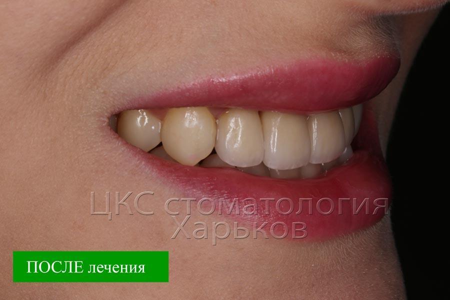 Современная стоматология в Харькове дарит высочайшую эстетику улыбке