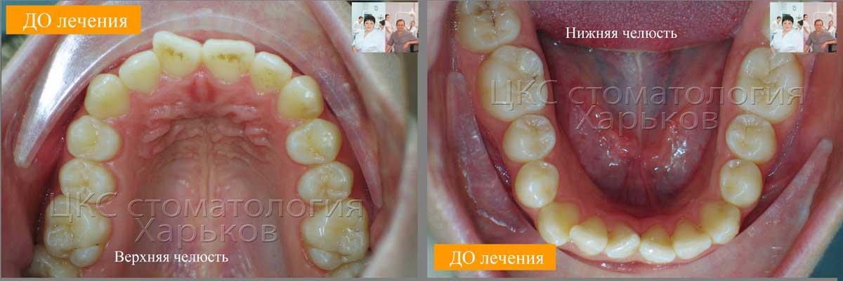 Определение дефицита места зубного ряда