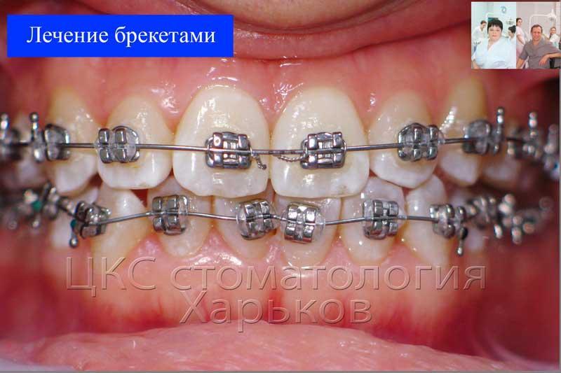 стальная брекет система установлена на две челюсти