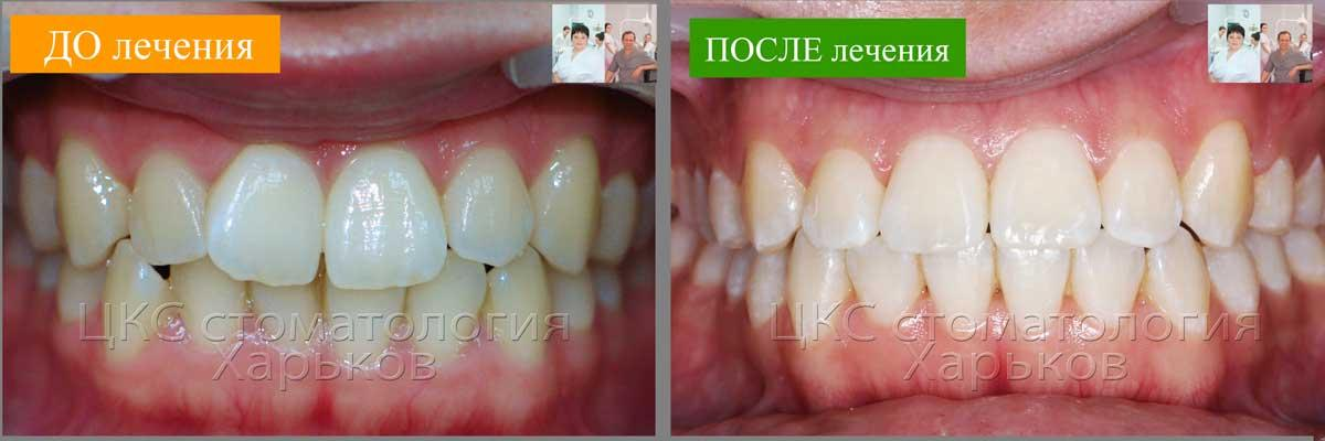 Зубы ДО и ПОСЛЕ ортодонтии