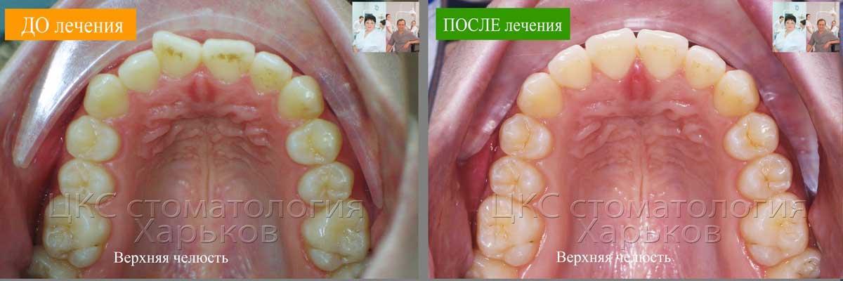 Зубной ряд верхней челюсти ДО и ПОСЛЕ