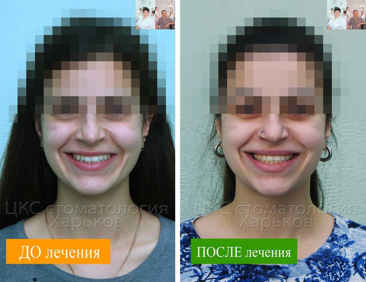 Стоматологическое лечение брекетами в Харькове