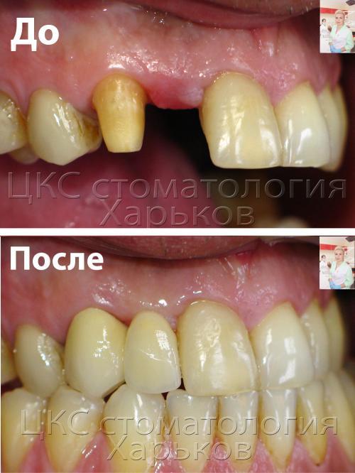 Фотография до и после установки моста пациенту