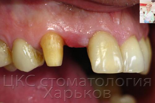 Верхний зубной ряд курильщика