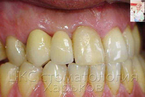 Новые зубы пациента установленные врачами ЦКС
