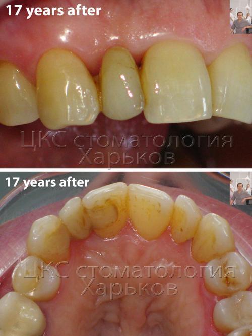 Зубной мост – верхняя челюсть