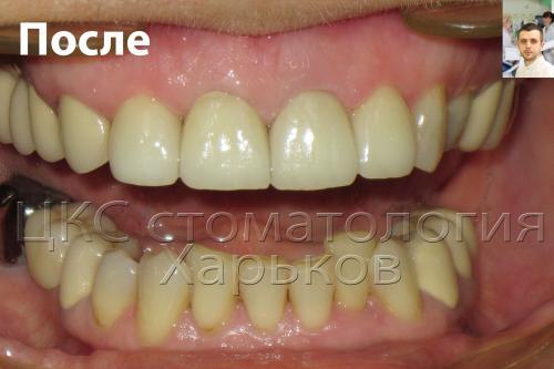 Улыбка пациентки после установки зубных коронок
