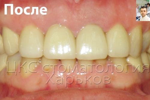 Малоинвазивное лечение зубов