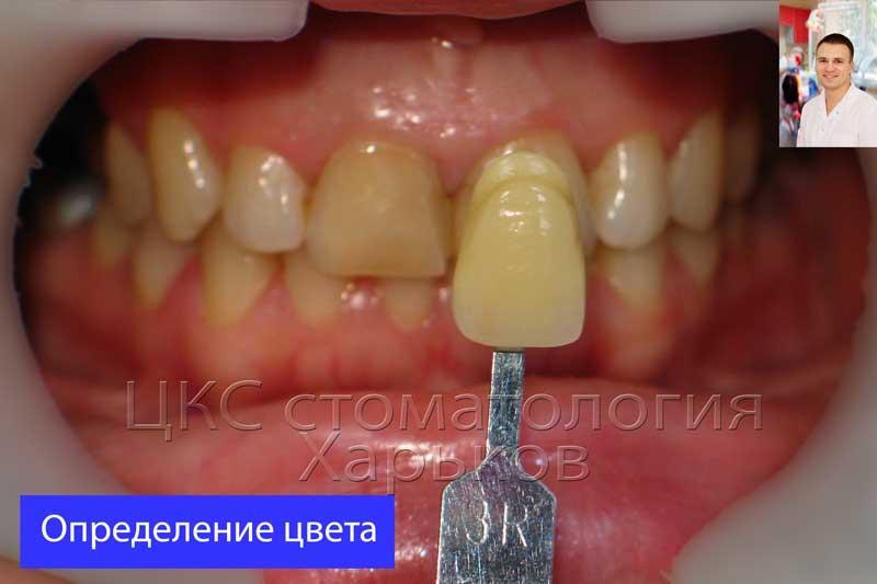 Определения цвета зубов