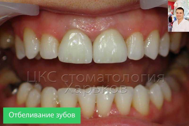Зубы после процедуры отбеливания зубов