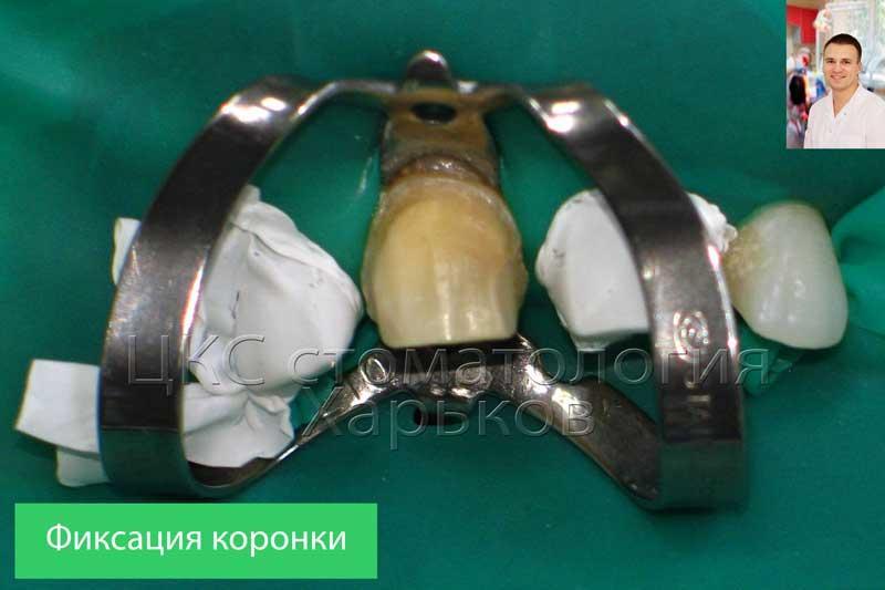 Процедура цементировки  коронок на передние зубы