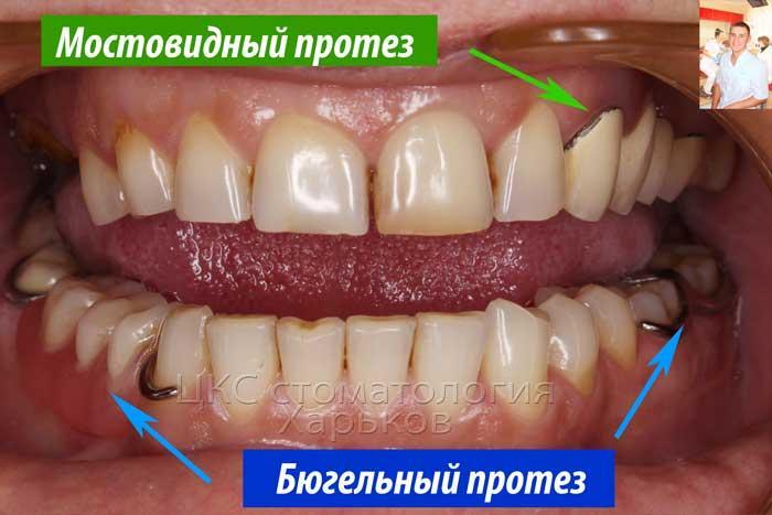 Ортопедические конструкции в стоматологии