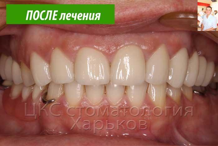 Красивые, белые зубы