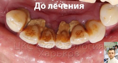 На зубах камни, десна воспалена