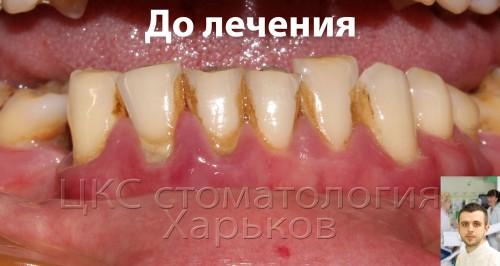 пародонтит, необходимо стоматологическое лечение