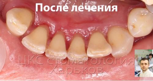 Фото после удаления зубных отложений