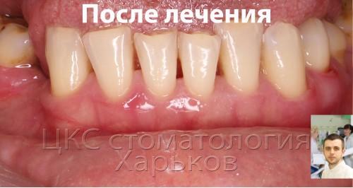 Чистка зубов – главный этап лечения пароднтита