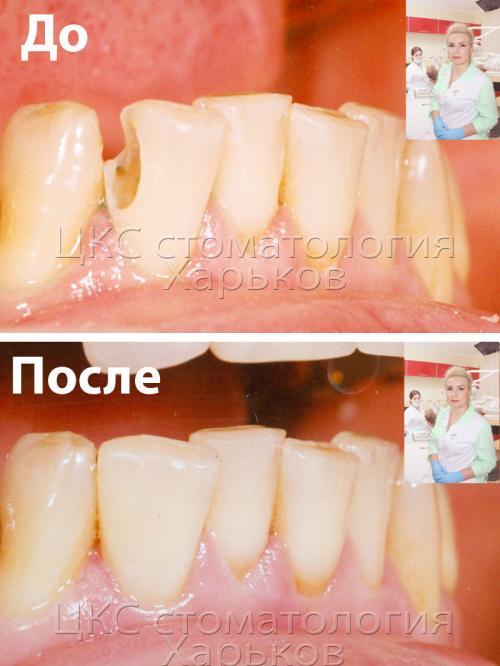 Сравнение зуба до и после лечения (установки пломбы)