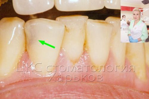 Фото зуба с неоднородным оттенком (скрытая полость)