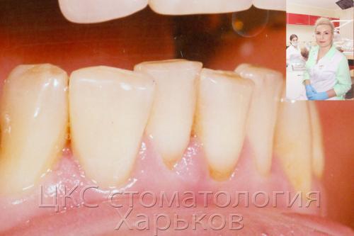 Зуб после пломбирования композитом светового отверждения