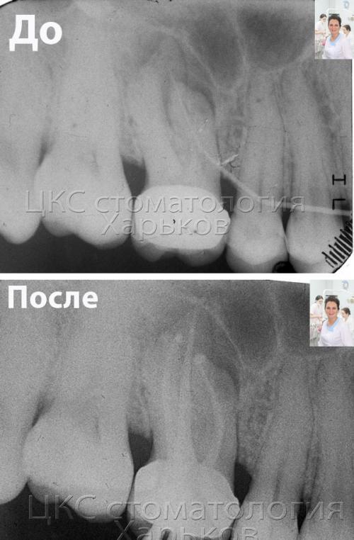Лечение зубных каналов – до и после