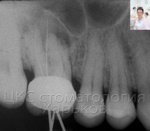 Приближенный снимок зуба