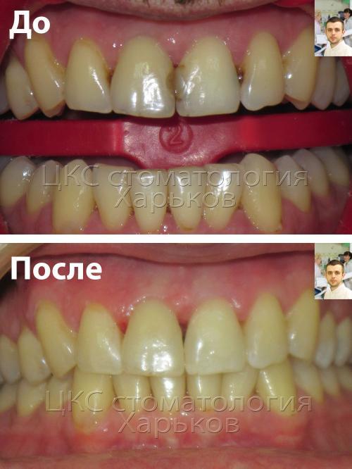 До и после лечения зубов