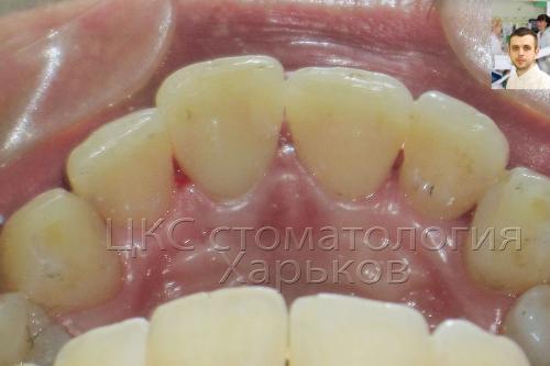 Внутренняя часть зубов после реставрации