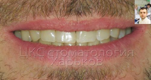 Белоснежная улыбка пациента